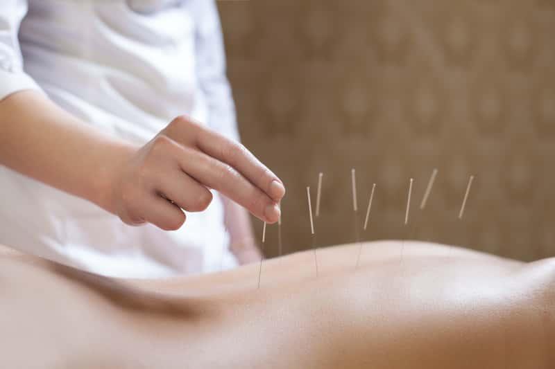 Na co pomaga akupunktura? Leczenie akupunkturą bez tajemnic!
