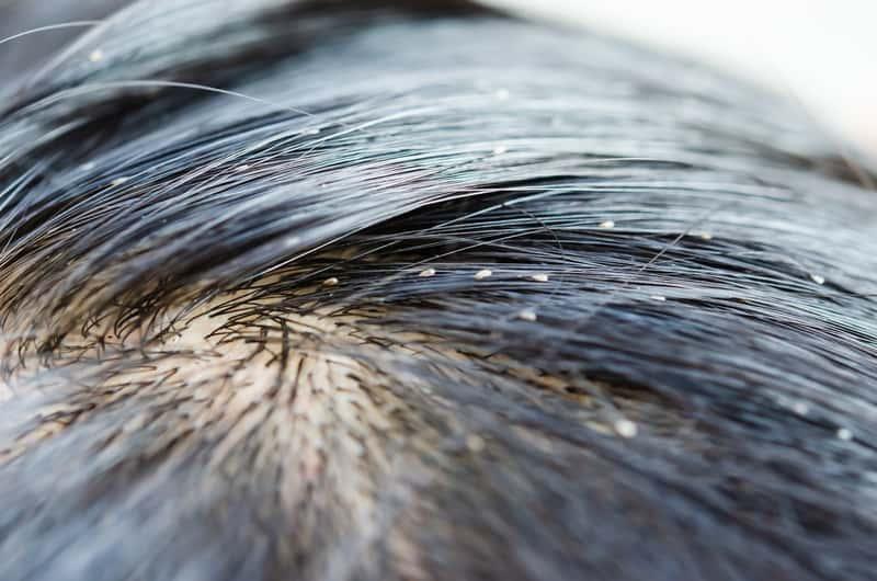 Jak rozpoznać gnidy we włosach? Jak się ich pozbyć krok po kroku?