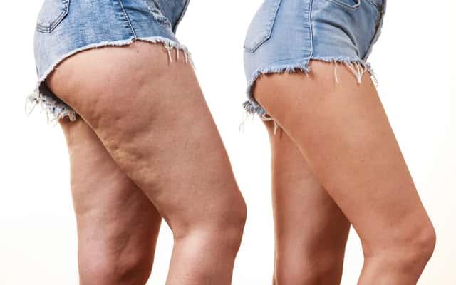 Jak pozbyć się cellulitu? Poznaj 7 najlepszych sposobów na cellulit