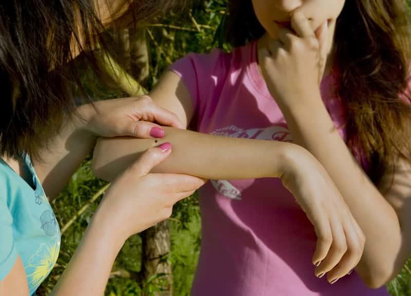 Co zrobić w przypadku kleszcza u dziecka? Objawy, postępowanie, porady