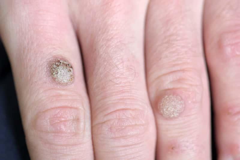 Kurzajka na dłoni i rękach – dlaczego się pojawiają i jak je leczyć?