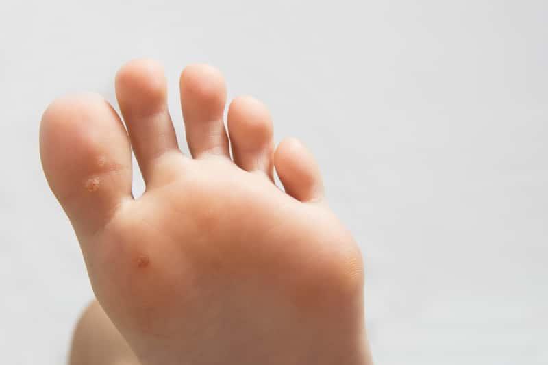 Kurzajka na stopie – jak wygląda i jak ją skutecznie usunąć? Poradnik