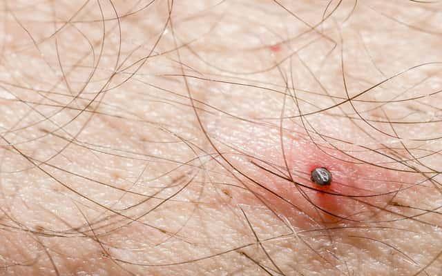 Po jakim czasie występują objawy ukąszenia kleszcza? Wyjaśniamy
