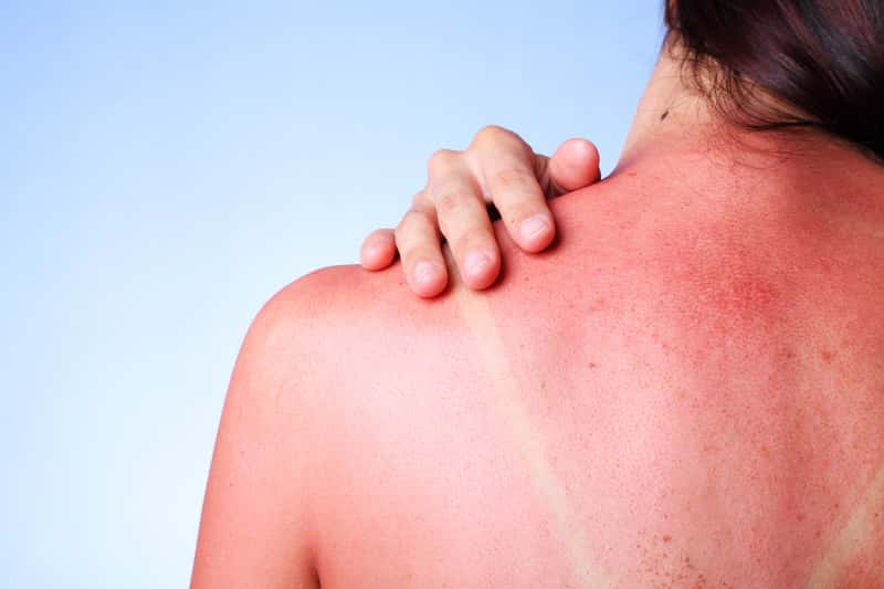 Domowe sposoby na oparzenia słoneczne – 3 sprawdzone metody