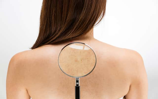 Plamy na ciele - rodzaje plam, przyczyny, leczenie, porady