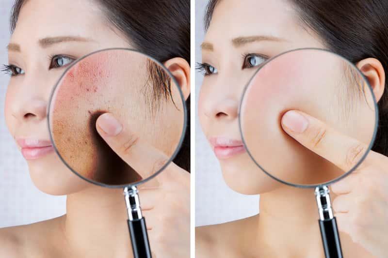Czerwone plamy na twarzy - przyczyny i sposoby leczenia