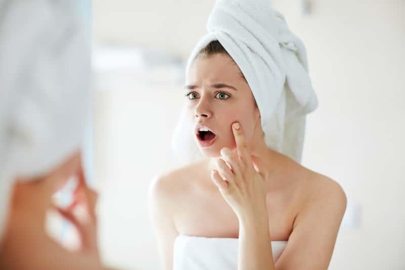 Domowe sposoby na pryszcze – 6 najbardziej skutecznych metod