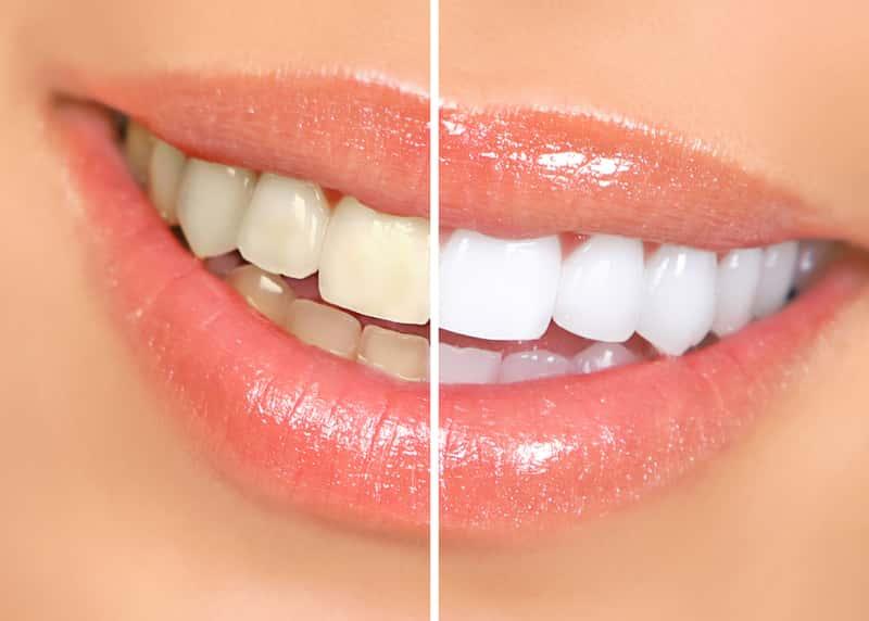 Domowe sposoby na wybielenie zębów – 6 skutecznych metod