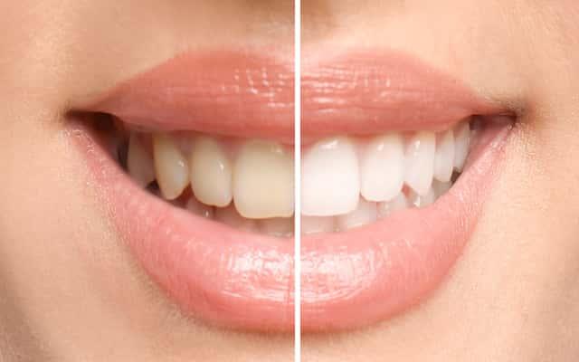 Czym i jak szybko wybielić zęby? Oto 5 najlepszych sposobów