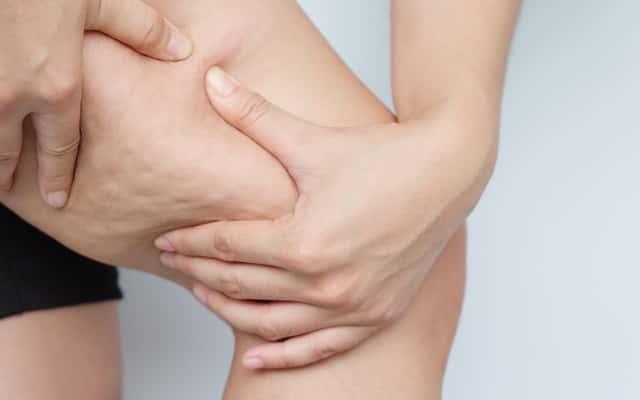 Jak zwalczyć cellulit krok po kroku – 5 najskuteczniejszych sposobów
