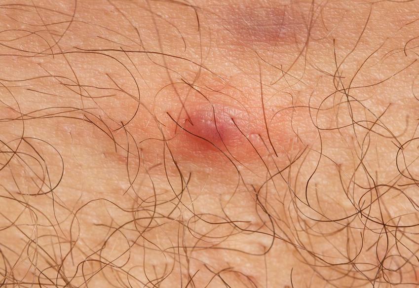 Czyrak na skórze, a także zdjęcia i informacje, jak wygląda czyrak na nodze czy czyrak na pośladku i jego leczenie