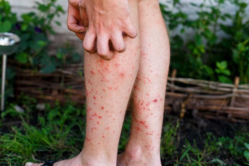 Czerwone plamy na nogach oraz plamki, wykwity i inne plamy na nogach, a także ich przyczyny, leczenie i zwalczanie