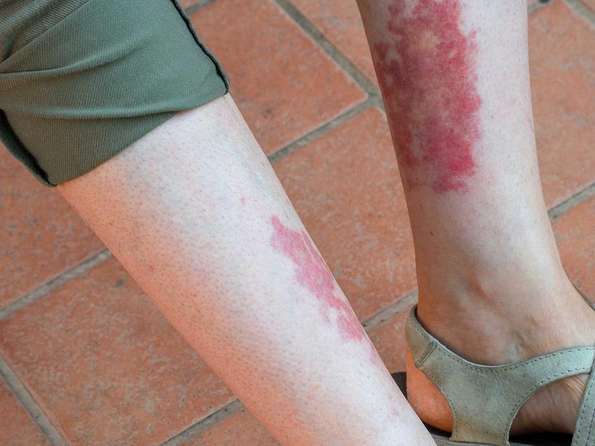 Duże czerwone plamy na nogach oraz informacje co mogą oznaczać plamki, wykwity i inne plamy na nogach