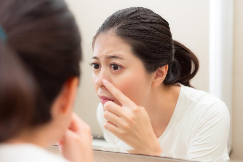 Kobieta usuwająca zaskórniki na nosie oraz wągry na nosie i jak pozbyć się wągrów z nosa