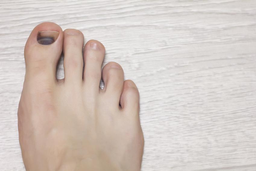 Siniak pod paznokciem u nóg oraz sposoby na krwiak pod paznokciem