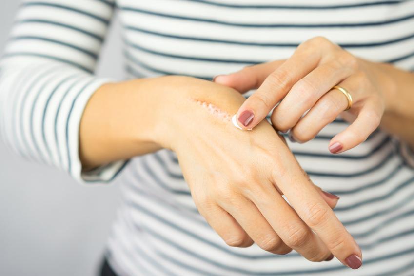 Kobieta smarująca maścią świeżą bliznę na dłoni oraz porady jak usunąć blizny