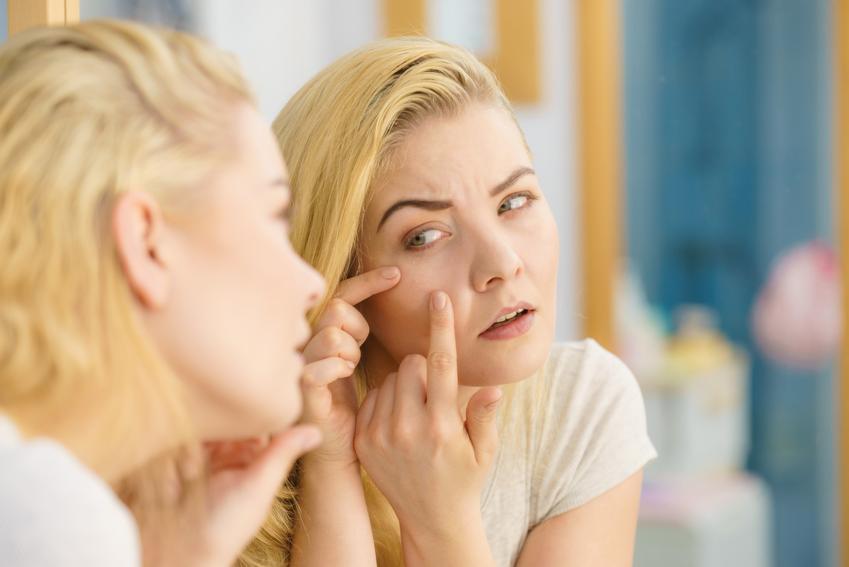 Kobieta wyciskająca zaskórniki na twarzy, a także zaskórniki otwarte i zaskórniki zamknięte