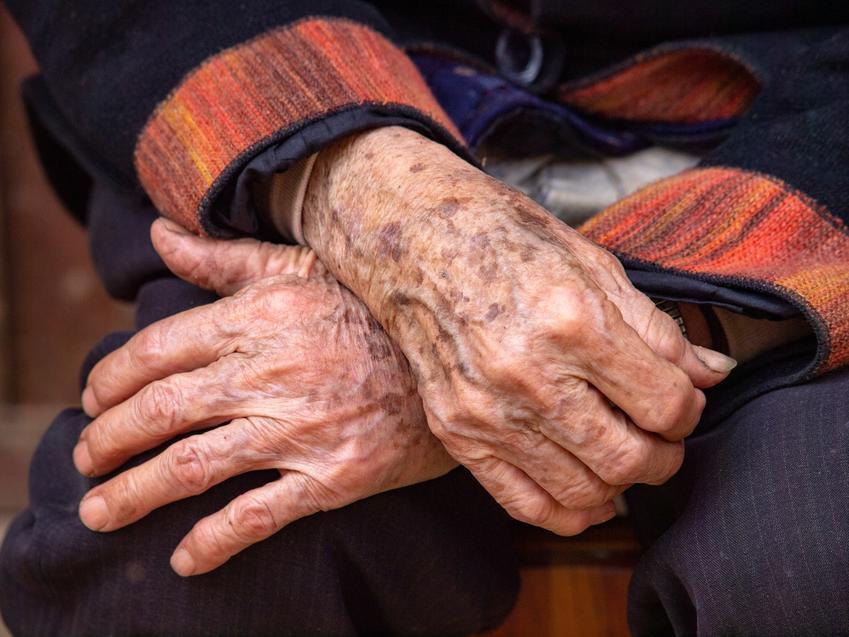 Złożone dłonie starszej osoby, a także czym są plamy soczewicowate i ich leczenie