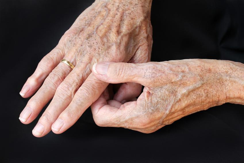 Dłonie starszej osoby na czarnym tle, a także plamy starcze na skórze i ich zwalczanie