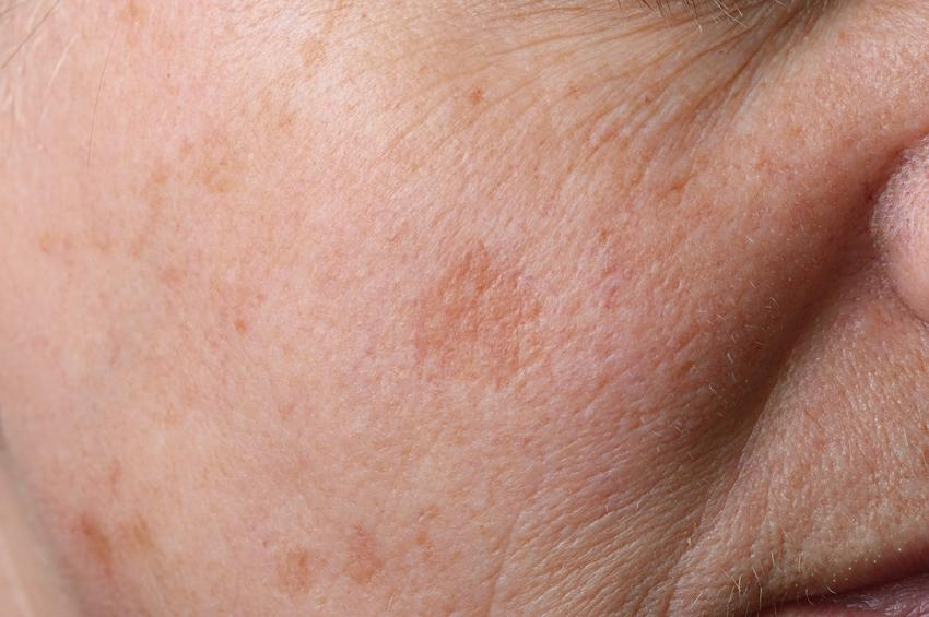 Przebarwienia na twarzy starszej osoby, a także różne plamy na skórze