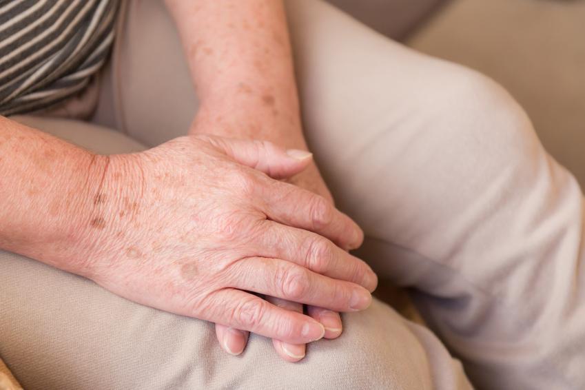 Przebarwienia na rękach starszej osoby, a także różne plamy na skórze