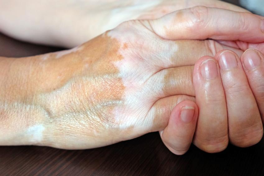 Białe plamy na skórze rąk, a także na ciele oraz powiązanie z nimi potencjalne choroby