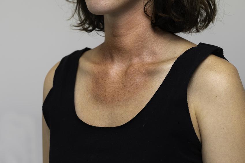 Kobieta w czarnej koszulce, a także skąd się biorą czerwone plamy na szyi i na dekolcie