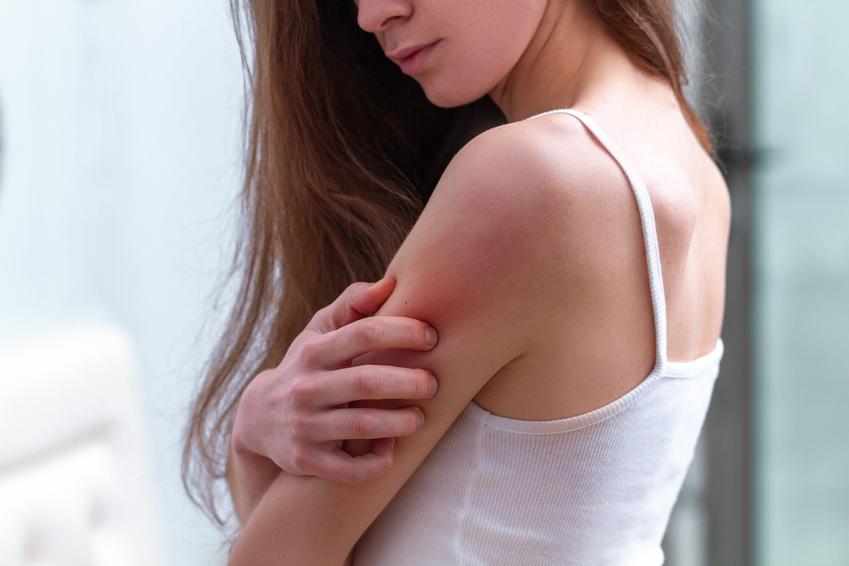 Kobieta drapiąca się w ramię, a także ugryzienie komara, ukąszenie komara