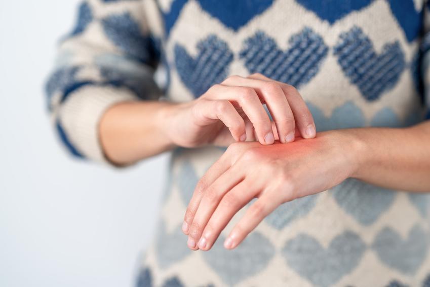 Kobieta drapiąca się po dłoni, a także opuchlizna po ukąszeniu i domowe sposoby na ugryzienie owada