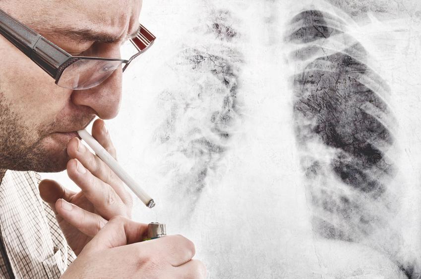 Mężczyna z papierosem na tle rentgena płuc, a także oczyszczanie płuc, czy płuca palacza się regenerują