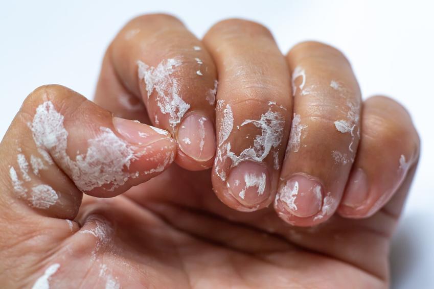 Ubrudzona dłoń klejem, a także czym rozpuścić klej super glue, czym zmyć krej kropelka z rąk