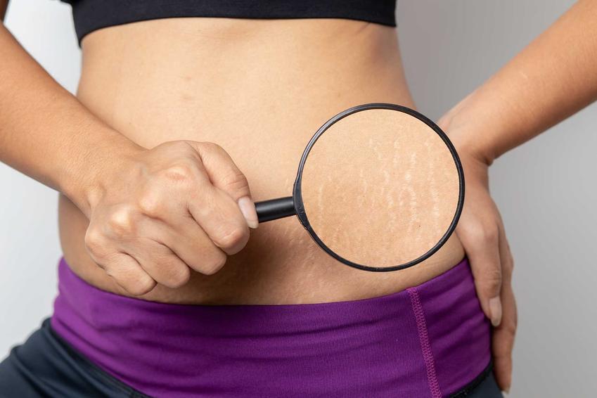Kobieta pod lupą oglądająca rostępy na brzuchu, a także 5 najlepszych sposobów, jak usunąć rozstępy z brzucha, ud, pośladków