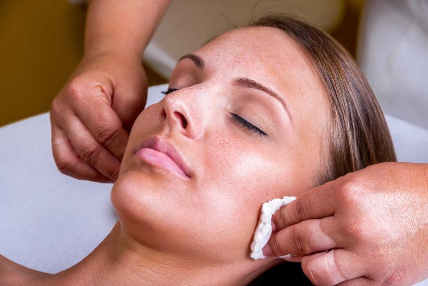 Usuwanie piegów na twarzy u kosmetyczki, a także jak się pozbyć piegów, najskutecziejsze profesjonalne i domowe sposoby
