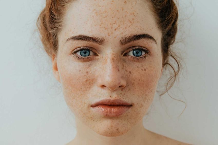 Kobieta z twarzą pełną piegów, a także informacje, jak się pozbyć piegów krok po kroku, czyli najbardziej skuteczne metody i sposoby na piegi