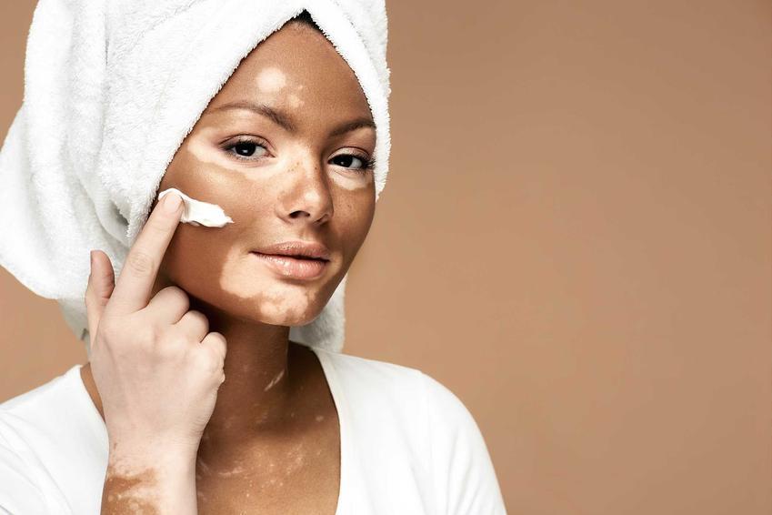 Pielęgnacja twarzy z bielactwem nabytym za pomocą specjalnego kremu witaminowego, a także przyczyny, objawy, leczenie oraz pielęgnacja skóry