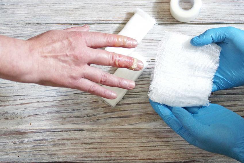 Oparzenie na dłoni, a także informacje, co jest dobre na oparzenia, czyli 5 najlepszych sposobów, jak sobie poradzić z oparzeniami