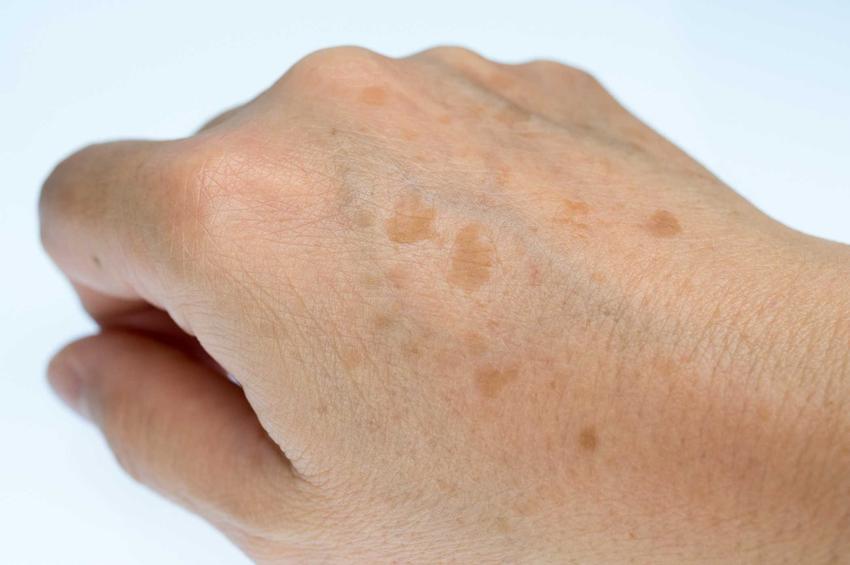 Przebarwienia i plamy na dłoni, a także przyczyny powstawania plam, choroby i leczenie krok po kroku