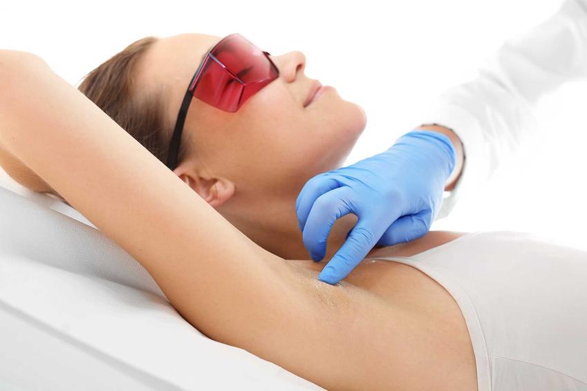 Leczenie przebarwień i plam pod pachami laserem, a także objawy, schorzenia, przyczyny oraz leczenie