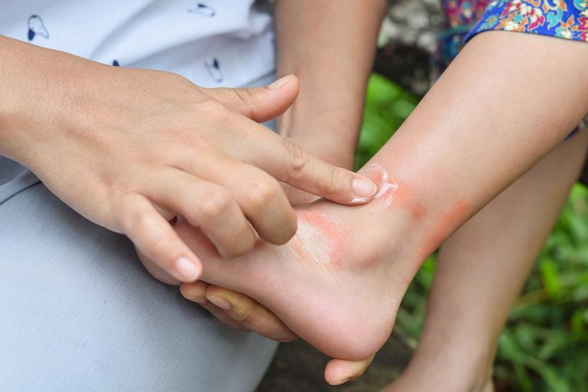 Ugryzienia przez pluskwy na nogach dziecka, a także informacje, jak wygląda ugryzienie pluskwy oraz rozpoznawanie i leczenie ukąszenia