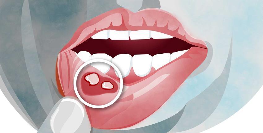 Domowe sposoby na afty w jamie ustnej, czyli naturalne leczenie aft i porady, jak walczyć z aftami na języku i dziąsłach