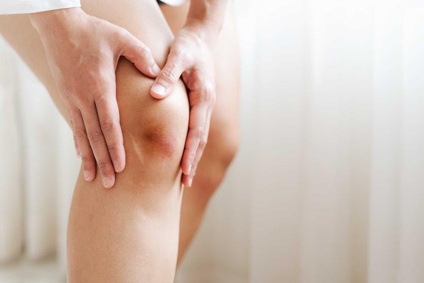 Stłuczone kolano, czyli domowe sposoby na stłuczenia oraz sposoby na wszelkie obrzęki, opuchnięcia i stłuczenia
