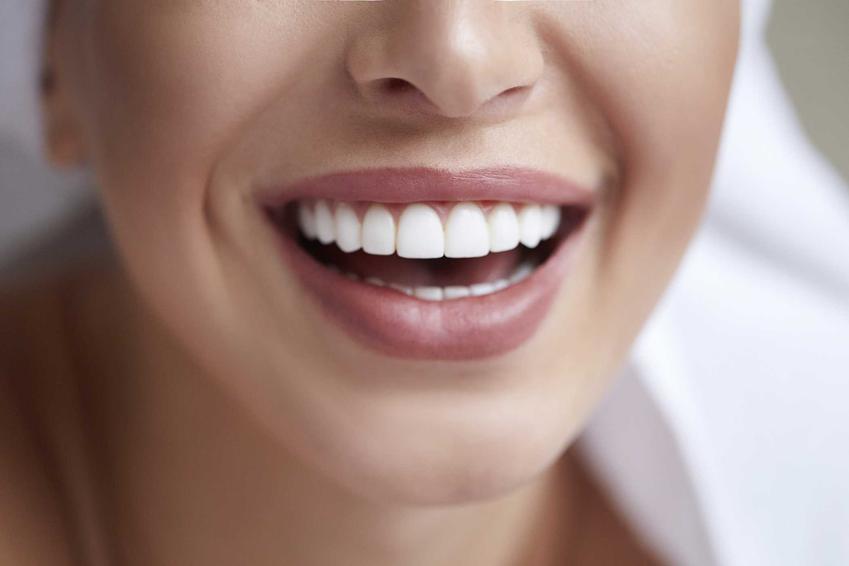Piękne białe zęby u kobiety, czyli domowe sposoby na usuwanie kamienia nazębnego, a także jak pozbyć się kamienia na zębach