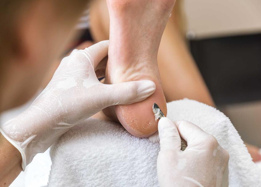 Brodawka na stopie lub kurzajka na stopie oraz skalpel i usuwanie brodawek na stopie w gabinecie lekarza krok po kroku