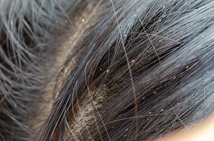 Gnidy i wszy we włosach oraz okres wylęgania gnidy we włosach, a także najlepsze sposoby i metody na wszy