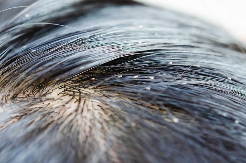 Gnidy we włosach, czyli jajeczka wszy i gnida ludzka oraz gnidy u dzieci, zapobieganie, leczenie, najlepsze sposoby i kosmetyki