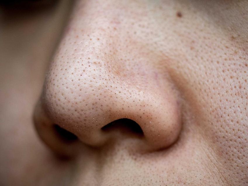 Czarne kropki na nosie, czyli wągry jako rodzaj czarnych zaskórników na nosie, a także ich usuwanie, zwalczanie i zapobieganie