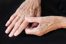 Plamy starcze krok po kroku - przyczyny i metody usuwania