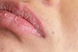 Pękające usta krok po kroku - przyczyny i najlepsze sposoby na leczenie