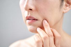 Ciemne, brązowe plamy na twarzy - przyczyny, objawy, leczenie