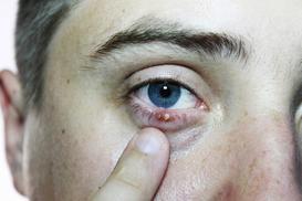 Domowe sposoby na jęczmień na oku – 3 sprawdzone metody leczenia